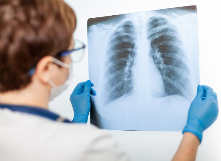 Have You Been Exposed to Asbestos?